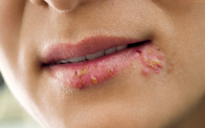cold sore: skin disorder