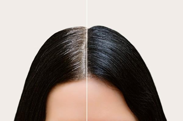 Why do we get gray hair